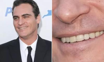 Joaquin Phoenix get his scar